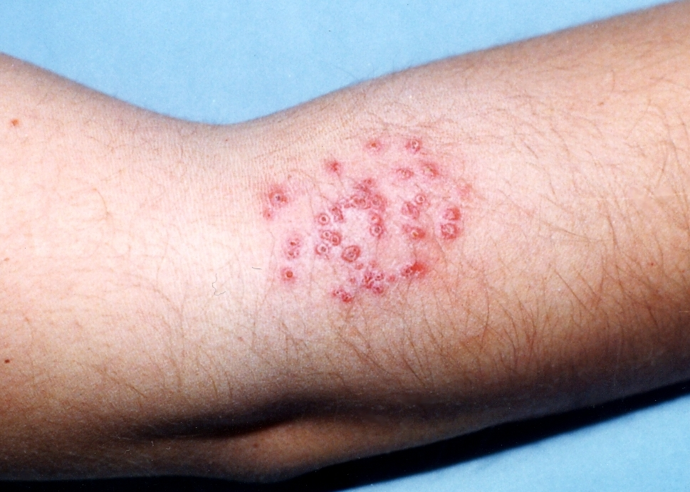 Eczema Herpeticum: Treatment, Symptoms, Diagnosis